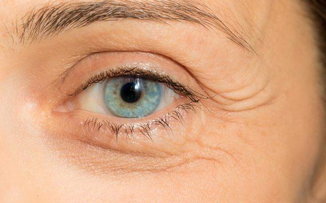 Gözlerdeki katarakt sorunları hakkında bilgi